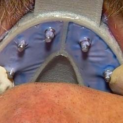 Hager MiraTray Implant Upper Small